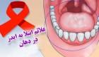 نشانه های مبتلاشدن به ایدز در دهان