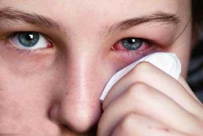 در هنگام آرایش به سلامت چشمان خود فکر کنید!