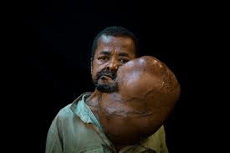 تومور غیرعادی مردی به اندازه دو برابر سرش! +عکس