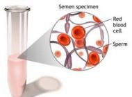 دلیل وجود خون در مایع منی چیست ؟