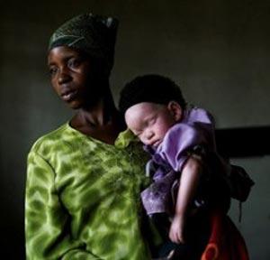 تجارت بی رحمانه اعضای بدن افراد زال در تانزانیا
