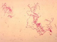 دانستنیهای جالب بیماری شانکرویید