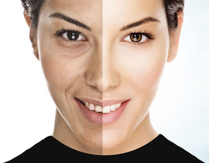 به چه روشی لکهای صورت را از بین ببریم؟