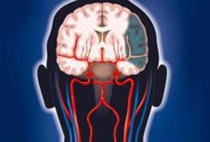 مطالبی جالب درباره ی تومور مغزی