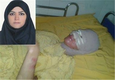 جزای پدری که به روی صورت دخترش اسید پاشید! +عکس