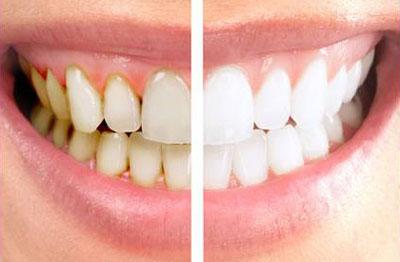 با جرمگیری دندان ها لق می شوند؟ +عکس