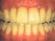 دلایل زرد شدن دندان ها چیست؟