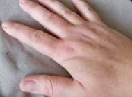 دلایل ورم کردن انگشتان دست ها نشانه چیست؟