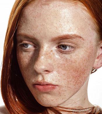 به کمک چه روشی از شر کک و مک صورت خلاص شویم؟ +عکس
