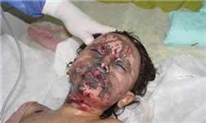 اخبار نهایی قربانی های روز چهارشنبه سوری در کشور +عکس