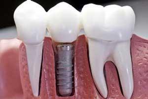 چه افرادی نمی توانند از ایمپلنت دندان استفاده کنند؟