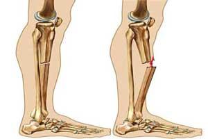 نشانه های شکستگی استخوان و روش های درمان +عکس