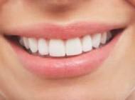 تا عید نوروز دندان های خود را سفیدتر کنید !
