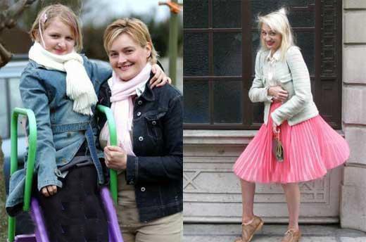 دختر چاق و زشتی که با بیماریش بسیار زیبا شد