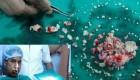 تصویر عجیب 232 دندان در دهان این نوجوان