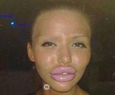 تصاویر چندش آور دختری که صورتش را قربانی جراحی کرد