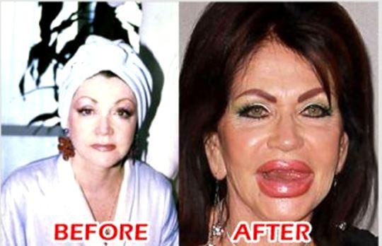 تصاویر جراحی زیبایی ناموفق در بین افراد مشهور