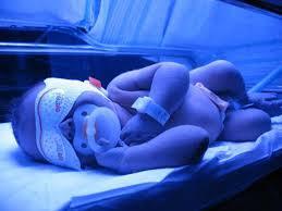 مراقب زردی نوزادان و کودکان در فصل باقلا باشید
