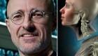 تصاویر نوآوری جدید علم پزشکی پیوند سر به بدن