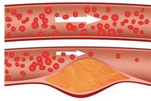 کلسترول بالای خون چیست و چه نشانه هایی دارد؟