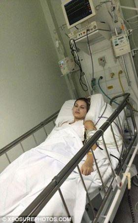عکس های عفونت شدید پای زن مدلینگ برای تزریق ژل