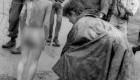 عکس دختر برهنه ای که از سوختن فریاد میزند