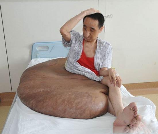 عمل جراحی تومور 110 کیلویی این مرد