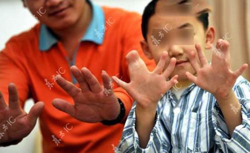 عکس های پسری با 30 انگشت در دست و پا