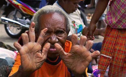 قطع کردن انگشت زنان به علت فوت فامیل