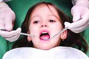 شیوه درمان جدید یک دندانپزشک ایرانی برای دندان های پوسیده