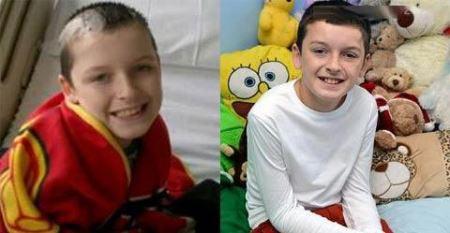 بیش از 40 عمل جراحی روی پسر 10 ساله
