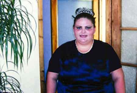 تغییر ظاهر این زن زیبا پس از کم کردن 120 کیلو