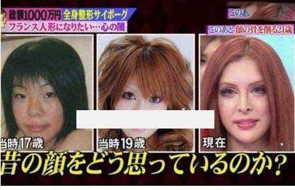 این زن با جراحی خودش را زیباترین زن جهان کرد