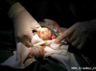 عکس سزارین مار 2 متری از شکم این زن جوان
