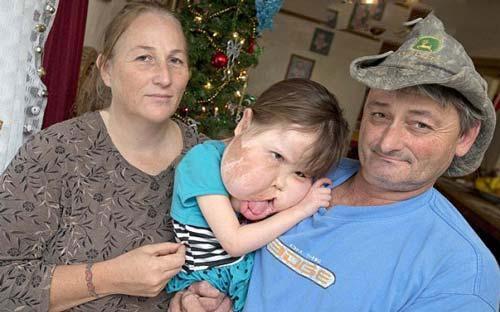 صورت عجیب و دردناک این دختر 4 ساله