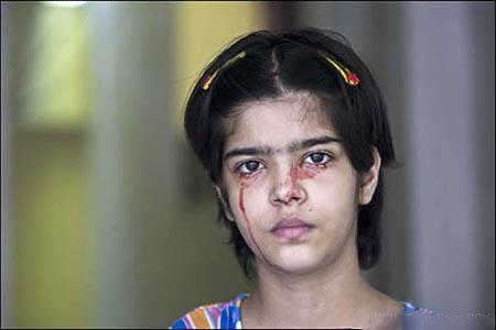این دخترک زیبا واقعا خون گریه میکند