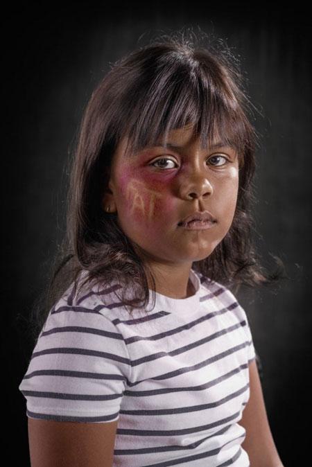 تصاویر تکان دهنده از زخم های خشونت کلامی