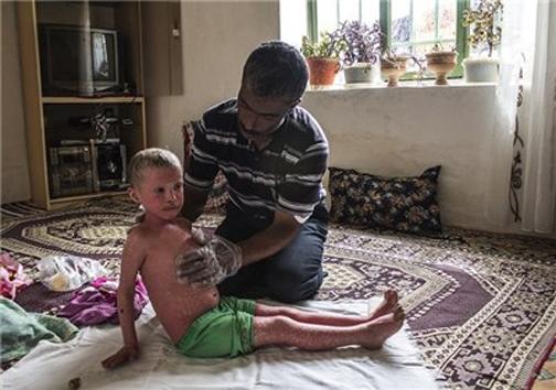 گریه های دردناک نرکس 6 ساله غرق در خون +عکس