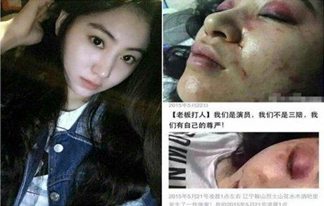 فرار از تجاوز علت اصلی ضرب و شتم وحشیانه این دختر