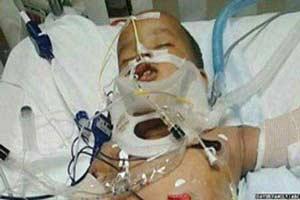 زنده ماندن عجیب کودک 1 ساله پس از سقوط از ساختمان 11 طبقه