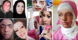 دستگیری شخص مظنون به اسید پاشی های اصفهان