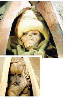تصاویر جالب از جراحی مغز باستانی
