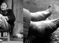 تحمل درد بسیار برای داشتن پاهای زیبای دختران چینی