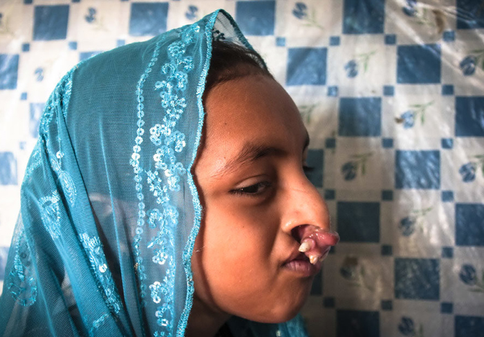 تصاویر عجیب و دردناک از بیماری این دختر 9 ساله ایرانی