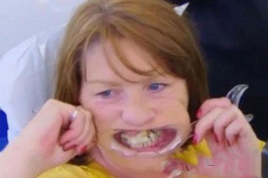 این زن ۱۰ سال تمام به دندان هایش سوپر چسب زد
