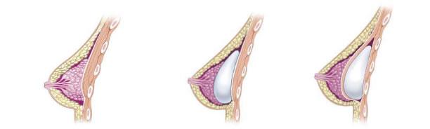 نکات مهم در جراحی زیبایی سینه