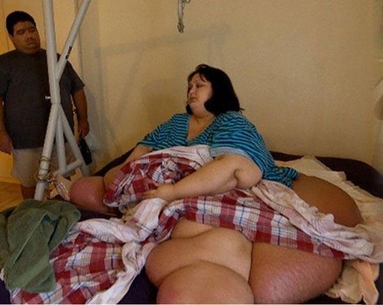 تصویر عجیب و زیبای زن نیم تنی که 300 کیلو لاغر کرد