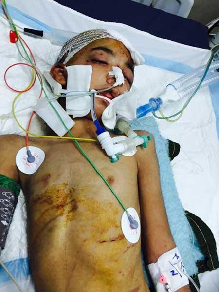 تصاویر + 18 شکنجه شدید یک نوجوان توسط آدم ربایان