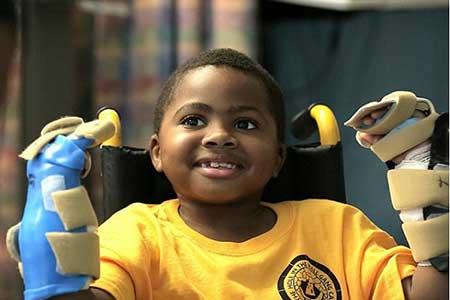 تصاویر پیوند موفقیت آمیز 2 دست برای کودک ۸ ساله