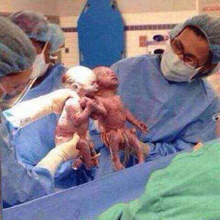 داداش دوقلو غیرتی که حتی در شکم مادر دست خواهرش را ول نکرد